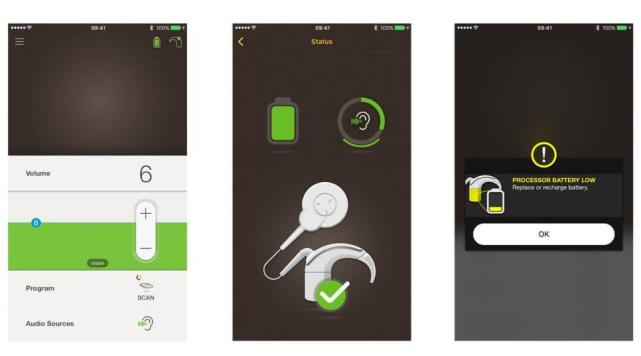 苹果与Cochlear合作推出全球首款iPhone人工耳蜗
