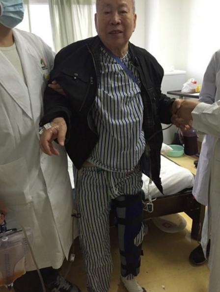 """84岁的中国老人接受""""世界第一""""3D打印钽膝盖移植"""