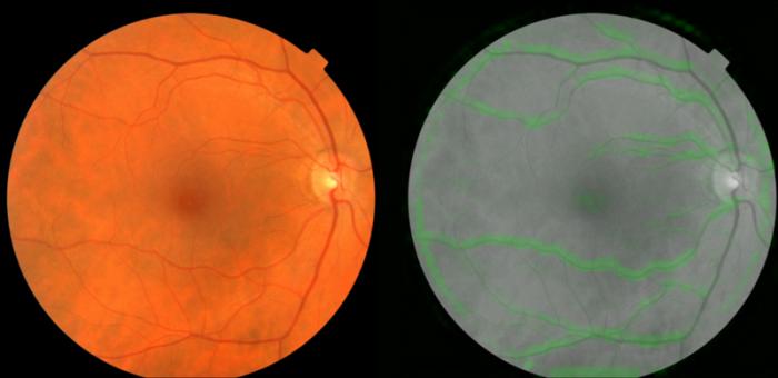 Google人工智能可使用视网膜图像预测心脏病风险